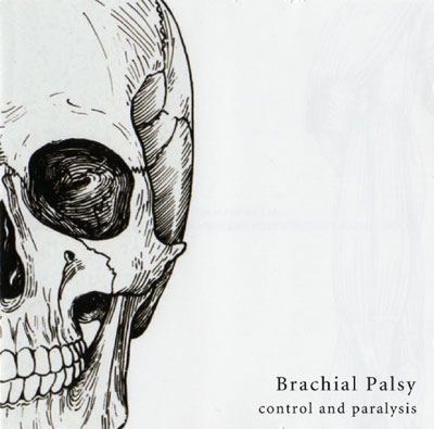 BRACHIAL PALSY : Control And Paralysis