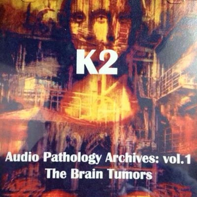 K2 : The Brain Tumors