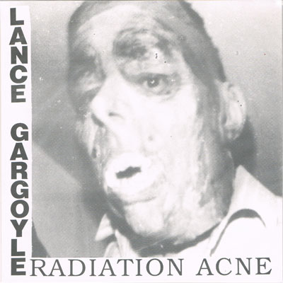 LANCE GARGOYLE : Radiation Acne